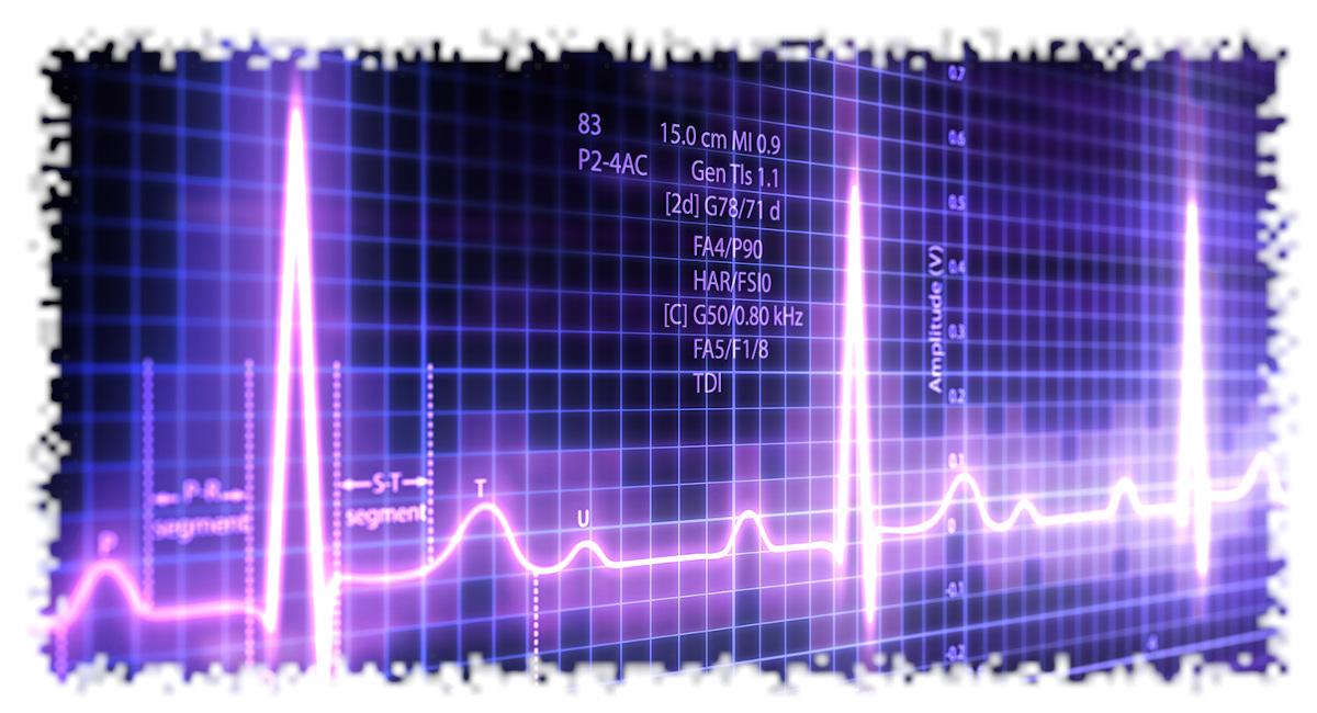 castellazzo-farmacia-elettrocardiogramma